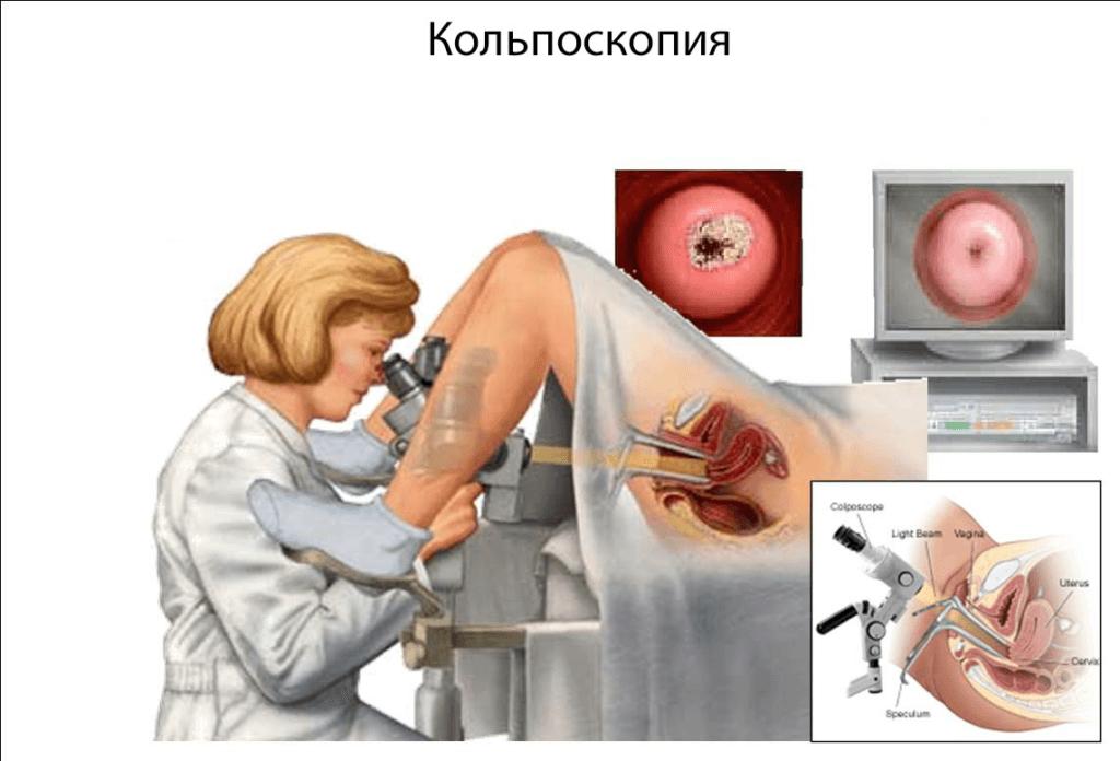 Кольпоскопия перед биопсией