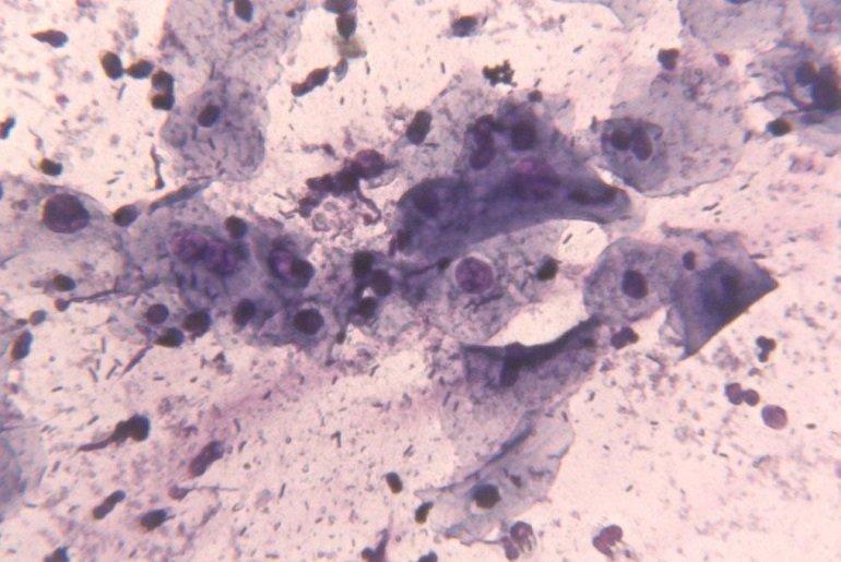 Пролиферация железистого эпителия шейки матки