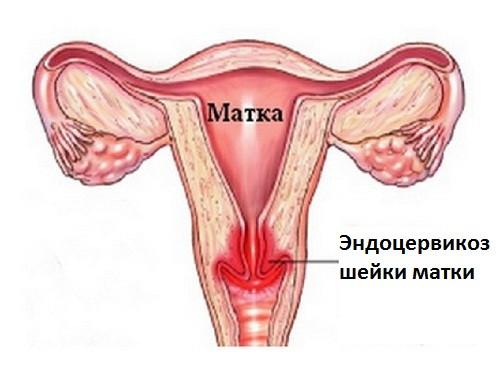 Стационарный эндоцервикоз шейки матки что это такое