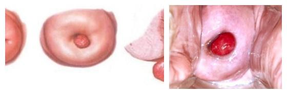 Выворот шейки матки после родов