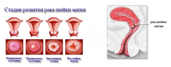 Плоскоклеточный ороговевающий рак шейки матки
