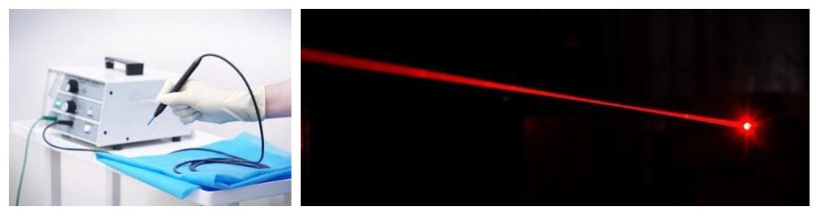 Лазерный луч и радиоволновая хирургия