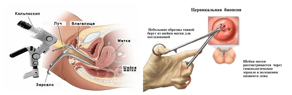 Биопсия и кольпоскопия шейки матки