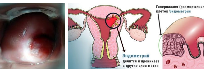 Гиперплазия железистого эпителия