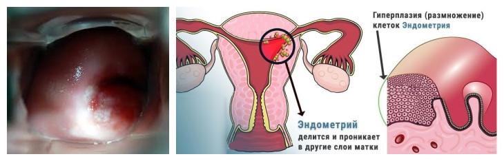 Гиперплазия железистого эпителия шейки матки