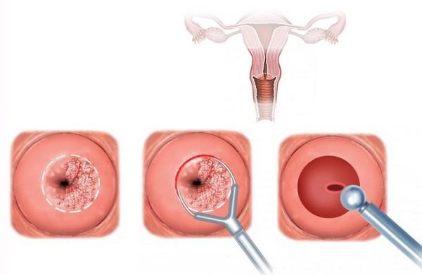Конусообразная биопсия