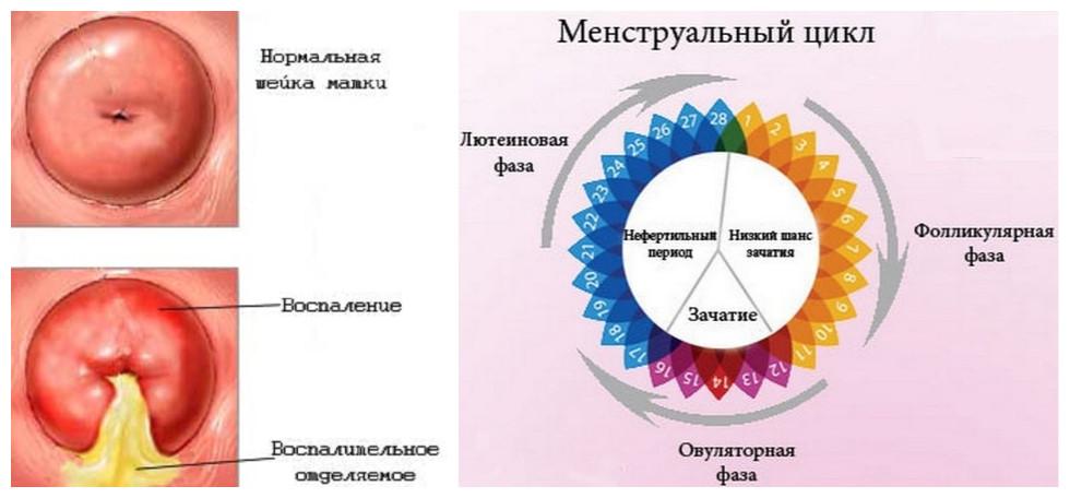 Нарушение менструального цикла и воспаление