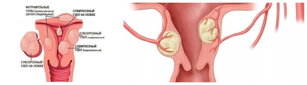 Субсерозный миоматозный узел матки размеры для операции