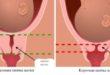 Укорочение шейки матки на 20 неделе беременности