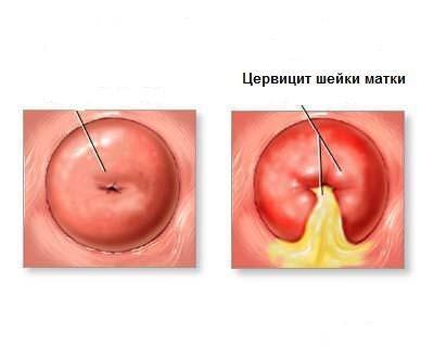 Псевдоэрозия на фоне цервицита