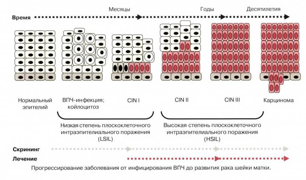 Плоскоклеточное интраэпителиальное поражение ШМ