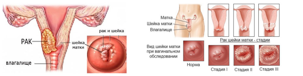 Признаки рака шейки матки