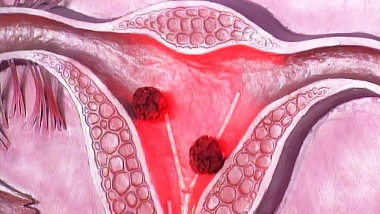 Классификация аденокарциномы шейки матки