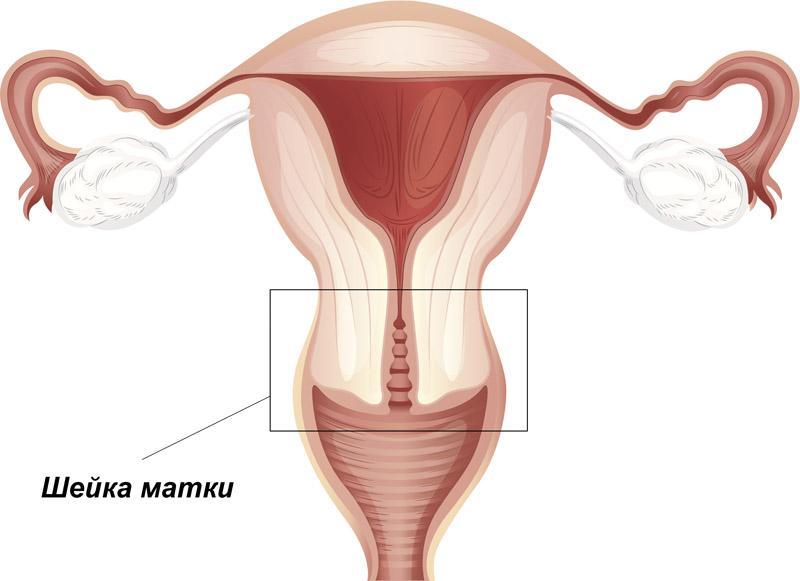Аденокарцинома матки - что это и как лечить