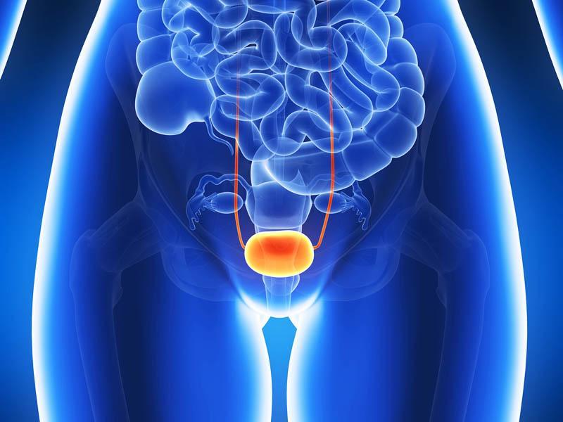 Боль при мочеиспускании и дефекации при эндометриозе
