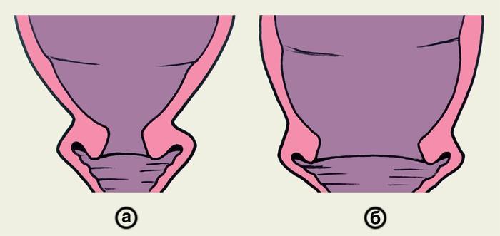 Схематичное изображение раскрытие шейки матки