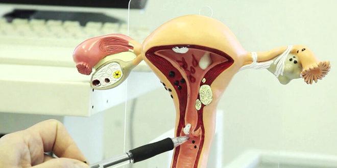 Почему на шейке матки появляются декубитальные язвы и как их лечить