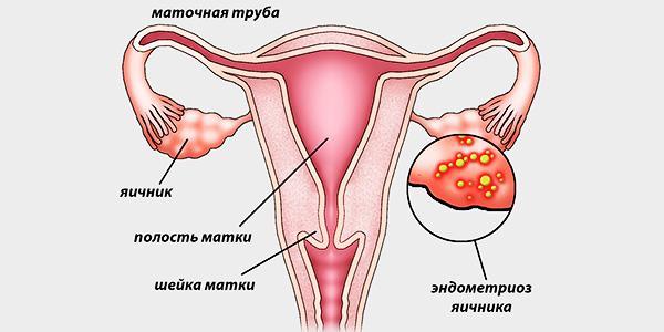 Причины эндометриоза яичников