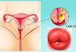 Как лечить кисты на шейке матки: симптомы и диагностика образований