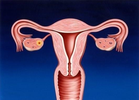 Расширение полости матки по узи причины