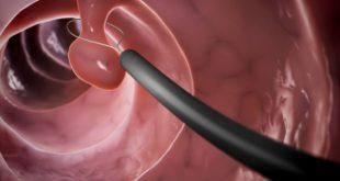 Полип цервикального канала: симптомы, диагностика и лечение заболевания