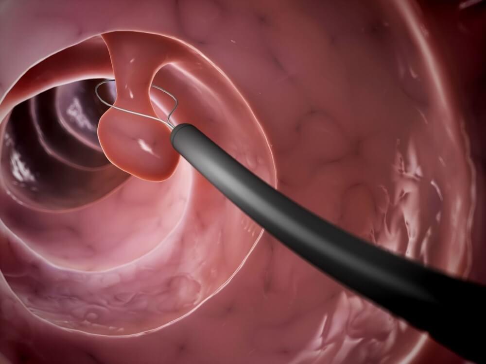 Полип цервикального канала – причины возникновения, удаление и лечение