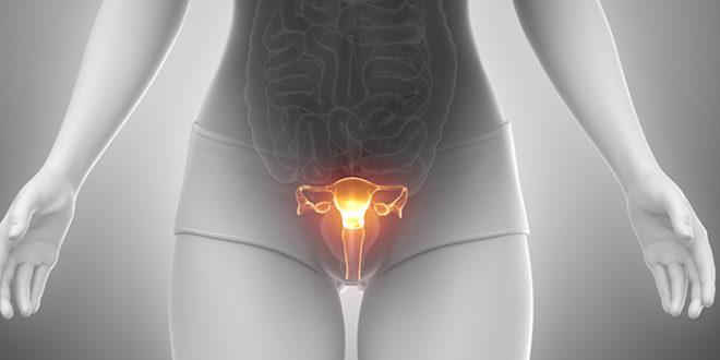 Эрозия и дисплазия шейки матки: как обнаружить и вылечить патологию