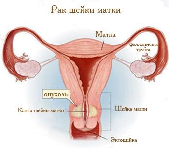 Стадии рака шейки матки: 0, 1, 2, 3, 4 стадии