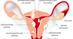 Диагноз: миома матки малых размеров