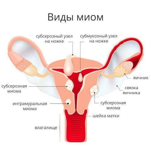Препараты при миоме матки малых размеров