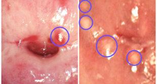 Эндометриоидная и наботова кисты
