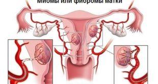 Фиброма матки