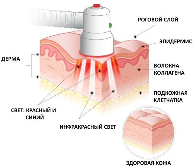 Фото: фотодинамическая терапия как делают?