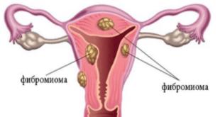 Фиброматоз матки