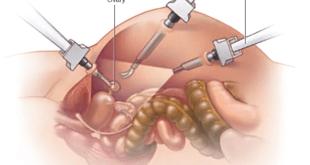 Овариэктомия у женщин старше 50 лет