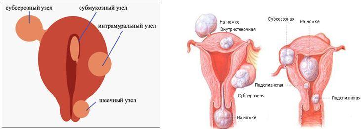 Миома тела матки при беременности - У истоков здоровья