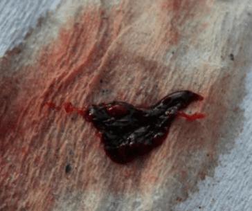 фото струп после прижигания эрозии