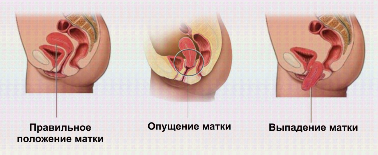 Выпадение матки у пожилых женщин, способы лечения опущения матки