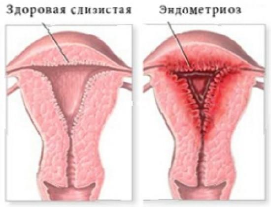 Топ-4 причин развития эндометриоза доступным языком