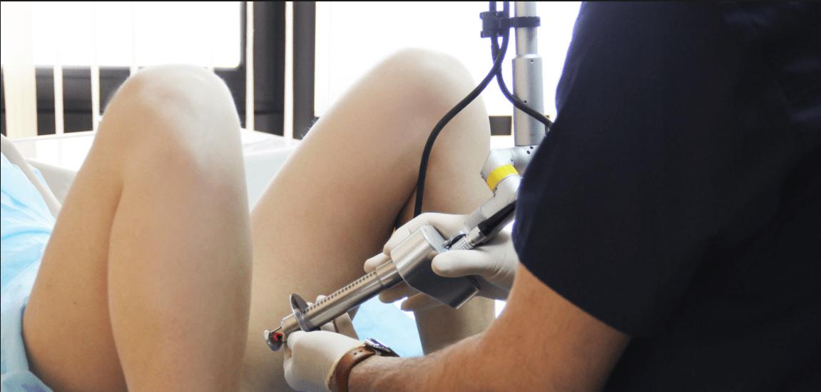 метаплазия шейки матки: хирургическое лечение