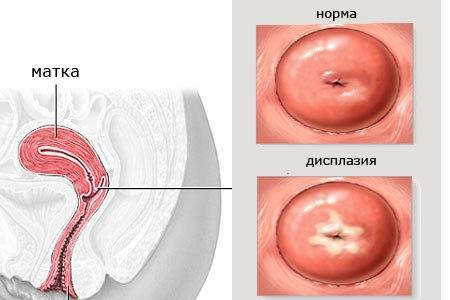 царской форум о дисплазии шейки матки ДЛЯ